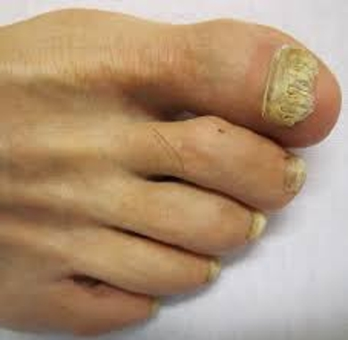 Discuss on Nail Fungus