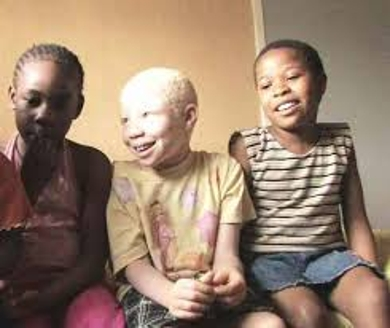 Know about Albinism