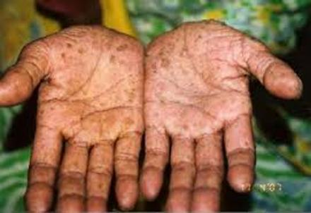 About Arsenic Poisoning