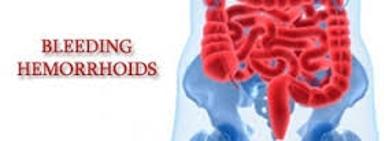 Bleeding Hemorrhoid