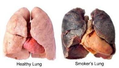 About Bronchitis