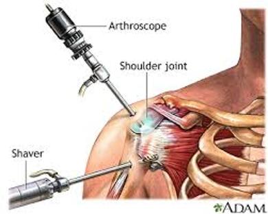 Frozen Shoulder Surgery