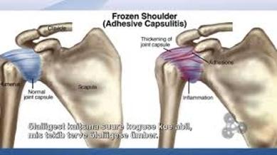 About Frozen Shoulder