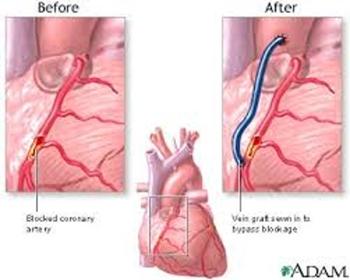 Heart Bypass Surgery