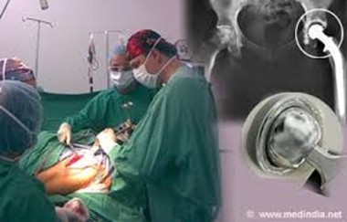 Know about Hip Replacement Surgery