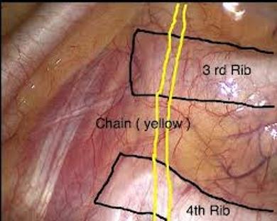 Hyperhidrosis Surgery