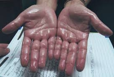 Define on Hyperhidrosis