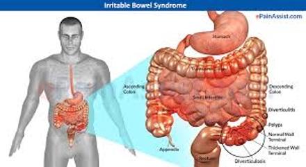 Symptoms of Irritable Bowel Syndrome