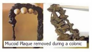 Mucoid Plaque