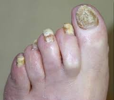 Ways to Identify Nail Fungus