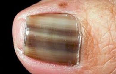 Nail Infection Fungus