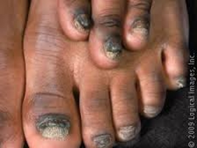 About Onychomycosis