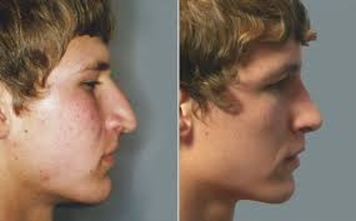 About Rhinoplasty