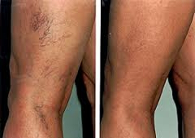 About Sclerotherapy