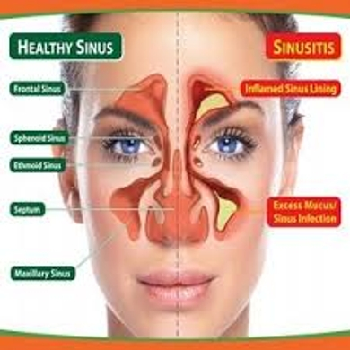 Know about Sinusitis