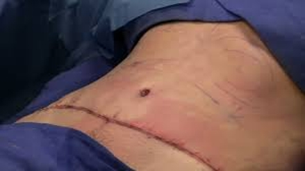 Know about Tummy Tuck Surgery