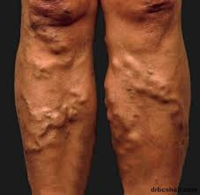 Define on Varicose Veins