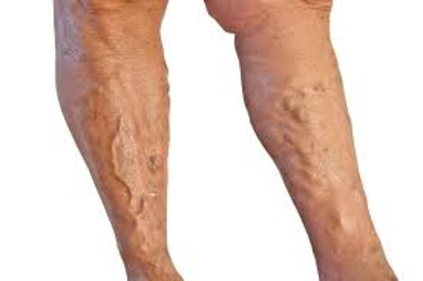 Discuss about Varicose Veins