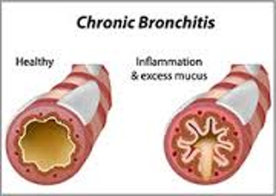 Definition of Chronic Bronchitis