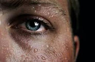 Facial Hyperhidrosis