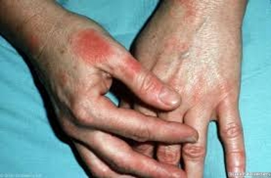 About Latex Allergy