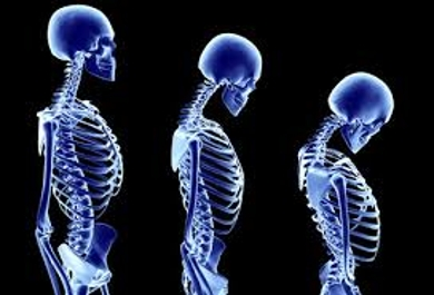 Analysis about Osteoporosis
