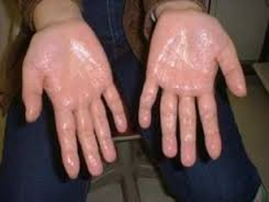 Definition Of Hyperhidrosis Assignment Point