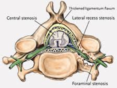 About Spinal Stenosis