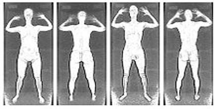 Backscatter X-ray