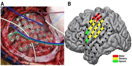 Cortical Stimulation Mapping