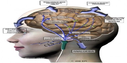 Cranial Electrotherapy Stimulation