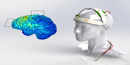 Electrical Brain Stimulation