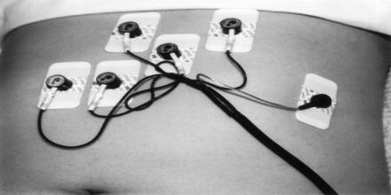 Electrogastrogram