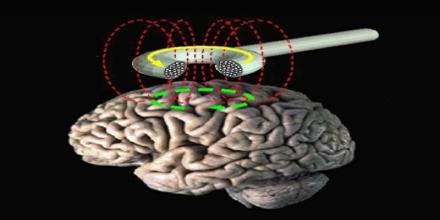 Magnetic Stimulation