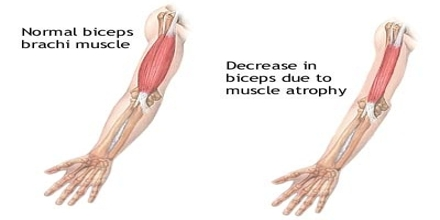 Muscle Atrophy Treatment