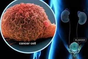 Define on Bladder Cancer