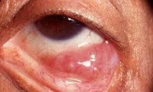 Ocular Lymphoma