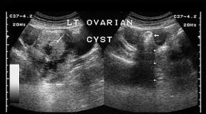 Abnormal Ovarian Cysts Assignment Point