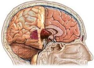 Astrocytoma Brain Cancer Tumors