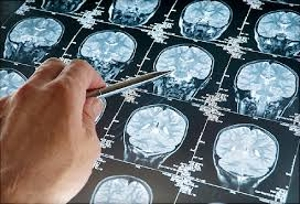 Know About Brain Cancer