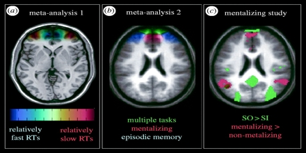 Functional Neuroimaging