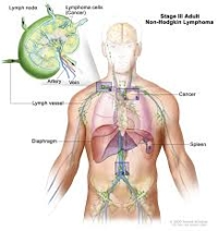 Lymph Node Cancer