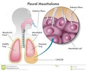 About Pleural Mesothelioma