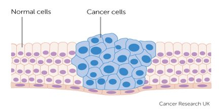 Lecture on Cancer