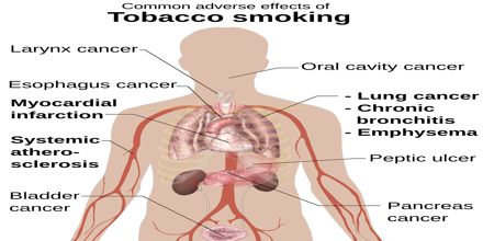 Thesis on lung cancer