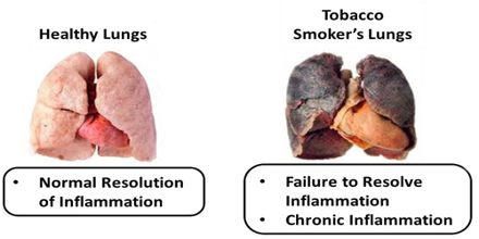 Lecture on Lung Disease