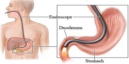 Lecture on Endoscopy