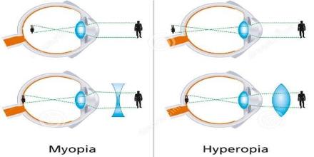 Human Eye: Hyperopia and Myopia