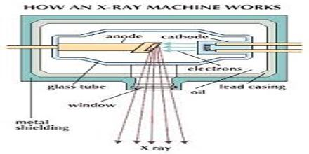 How X Rays Work?