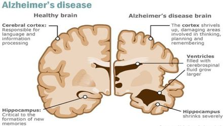 Alzheimer S Disease Causes And Treatments Assignment Point